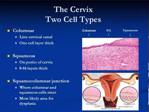 Womens Health Pap Smear and Cervical Dysplasia - YouTube