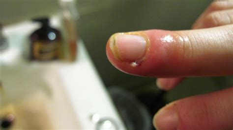 What Does a Person With a Swollen Finger From a Cuticle