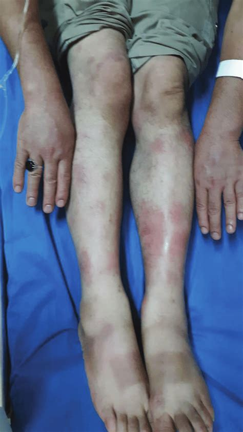Clinical image of erythema nodosum on arms and legs